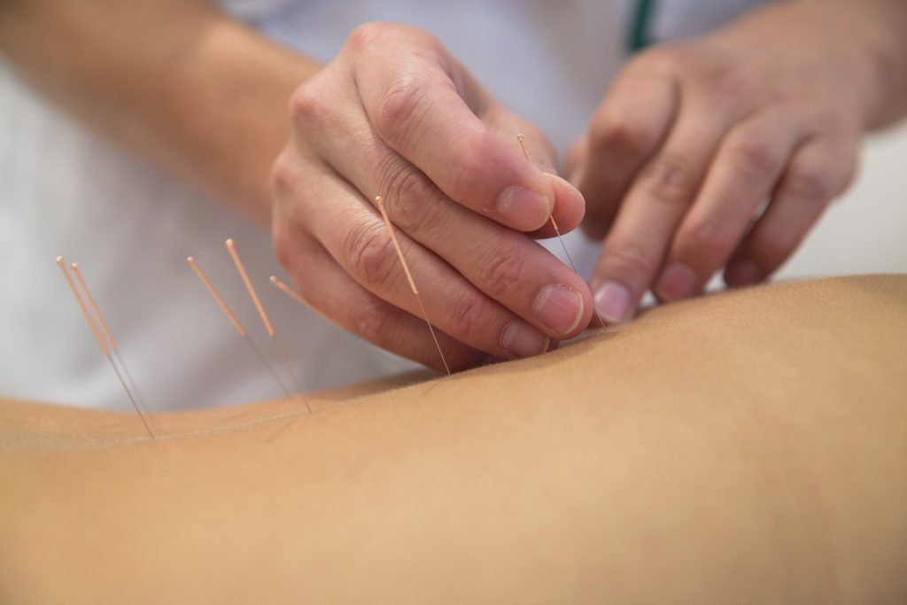 acupuncture london